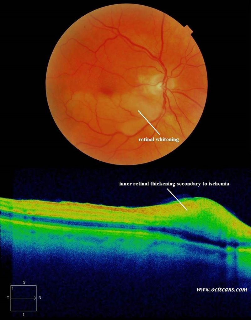 Retinal Artery Occlusion - Optical Coherence Tomography Scans