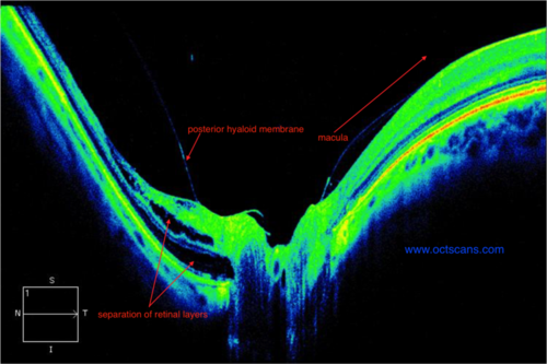 Peripapillary schisis myopia